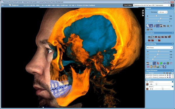 Tomograf 3D - rtg zębów Gdynia Planmeca proMax