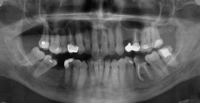 zdjęcie pantomograficzne - rtg zębów Gdynia
